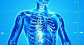 Za manj osteoporoze