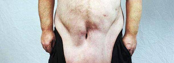 Problem uvele kože v času običajnega hujšanja